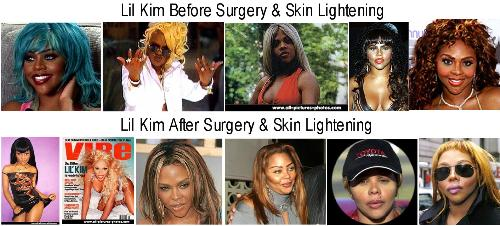 LIL KIMS Transformation  - Lil Kim has gone too far with her surgeries. She looks whiter than ever and her nose looks like Micheal jackons.