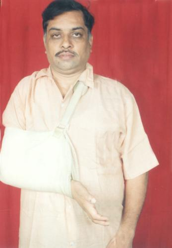 prasad 1961 - Accident happened exactly on 10/12/2003, since then I'm like this, and in order to not sub-lux further at shoulder Joint I have to wear the bag permanently. The Injury is called Right Brachial Plexus. Due to this only right hand actions were paralysed.