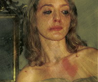 Violence Against Women - A phot showing a woman that was severely beaten