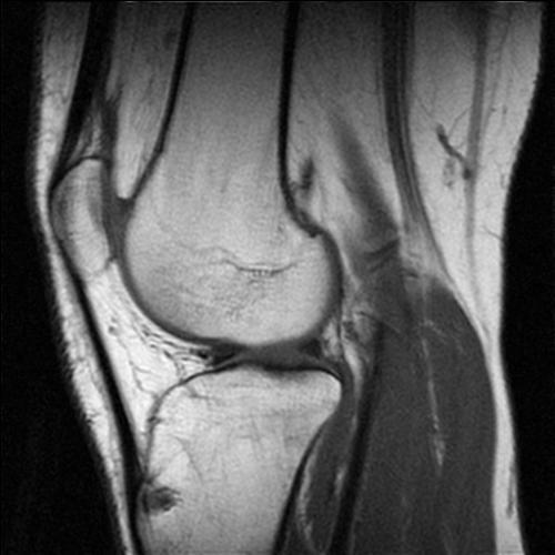 knee - knee radiology