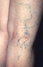 varicose veins - varicose veins or spider veins