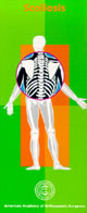 Scoliosis - Parents should constantly check their children for signs of scoliosis.