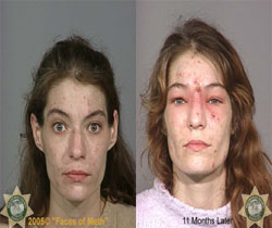 The face of meth - picture of before and after affects of meth