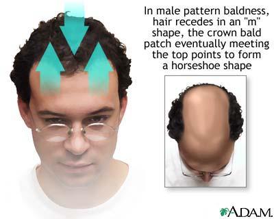 Baldness. - Baldness....