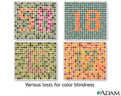 color blind - a picture of a chart showing color blindness