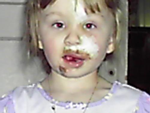 dog bite 4 year old - this little girl ran into an american bulldog who didnt like kids!