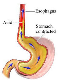 Acid Reflux - A diagram of what the stomach looks like when acid reflux happens.