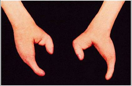 Lobster claw-like hands - This is the typical characteristics of ...