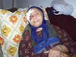 A grandmother attacked - A picture of a grandmother attacked in her own house