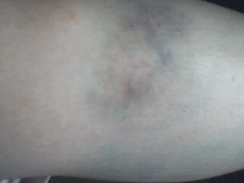 Bruising - This is a huge bruise that I had. Just found it on the computer