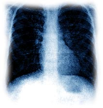 Lungs - X-ray Lungs that are affected with cs.