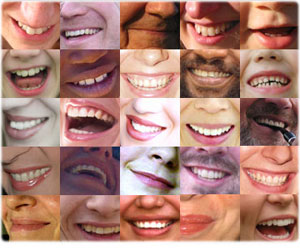 White Teeth Smiles - Whites Teeth smiles