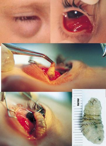 maggot,myiasis - an operation to remove a maggot in eye