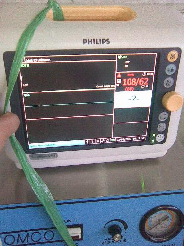 cardiac monitor - this is for the vital signs of patients