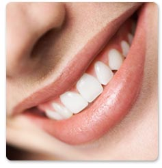 white teeth - picture showing white teeth
