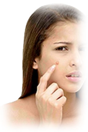 myLot Photos - pimples