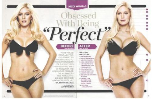 Heidi Montag Before and After - You can see the BIG difference her. Well she's happy now that's what she said.