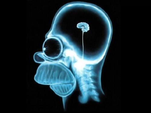 Homer Simpson Brain (if we don't use technology to - This is a small version of our brain (actually, it is Homer Simpson's Brain). What does this have to do with our laziness? Everything. If we don't use technology to our advantage (meaning using technology to learn things, not to eat cookies n cream for dinner, or play Pac-Man for the entire night), then the laziness will zap our brains into useless material.