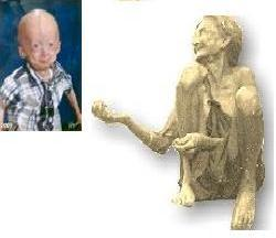 progeria patient and a degenerate - The photo shows two characters. The child on the left is suffering from a rare disease called 'Progeria' in which a child of 7 looks to be 70 ! The person on the left is a degenerate.