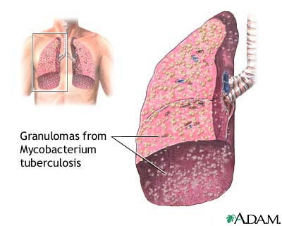 Tuberculosis - Tuberculosis usually attacks the lungs but can also affect other parts of the body. It's transferred through inhalation of the virus from a person affected who sneezes or coughed. It can cause death but is already treatable in this time.