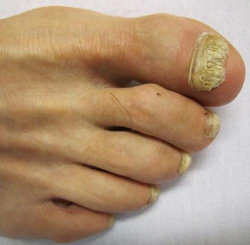 Toenail Fungus - This is a toenail problem I worry about!