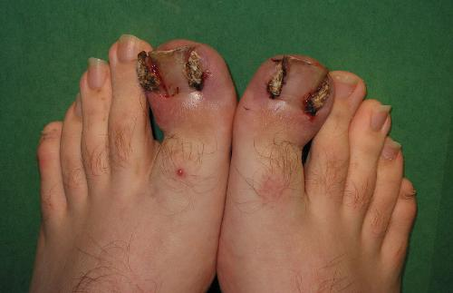 Ingrown toenails - Had this problem on one toe but it was not that bad! yikes!