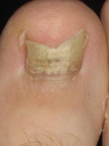 Toe Fungus - My oldest brother has it and doesn't do anything about it! Weird!