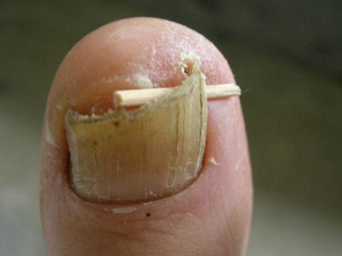 Ingrown toenail - Going to the extreme to avoid an ingown toenail! Just use a toothpick!