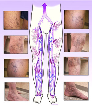 Varicose veins -  Varicose veins are veins that become enlarged and tortous.