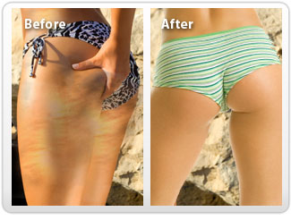 Stretch marks - Stretch marks are a form of scarring of the skin with an off-color hue.