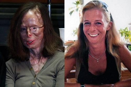 Picture of Patricia Lefrace - This is the picture of Patricia Lefranc the girl who Incredible bravery of acid attack