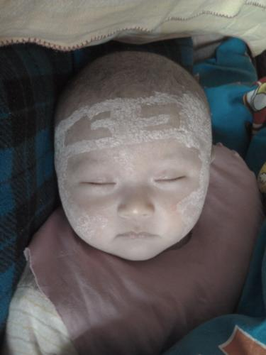 curing eczema - first time, we use the medical lotion to coated with her face. do a face painting.haha~