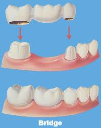 dental bridge, work done