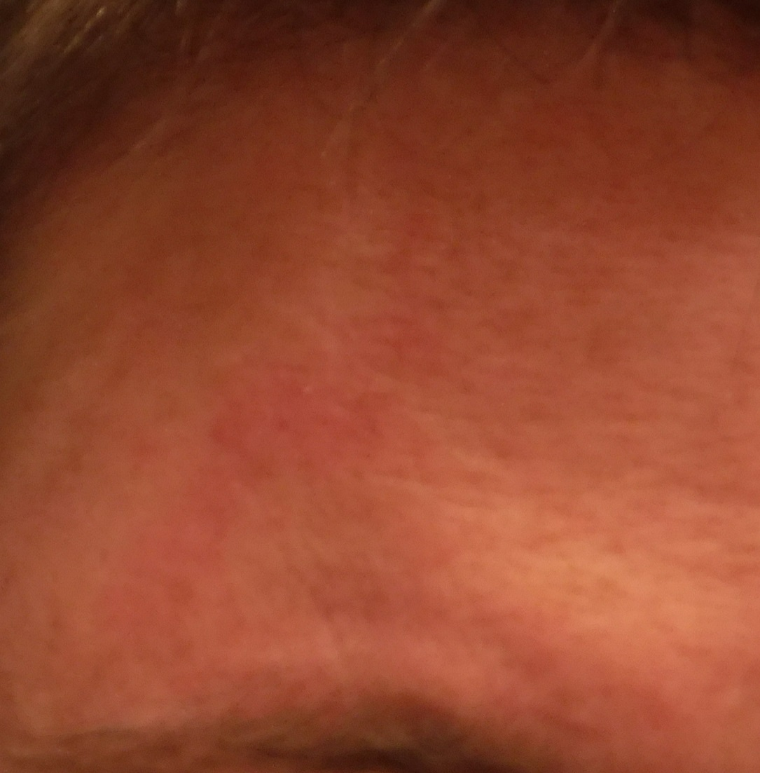 Mark on my head from banging into pipes the other day