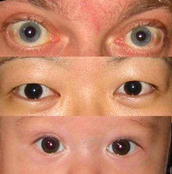 Eyes Galore - what do these eyes say?