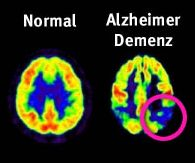 alzheimer - this is alzheimer disease