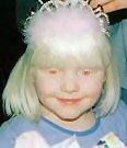 White Albino - White Albino Little Girl