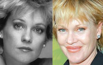 trout pout LOL - melanie Griffith before and after pic
