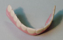 cosmetic teeth - This is one pic of how the teeth look.
