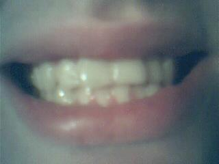 Teeth - My teeth, quite an old picture though! Like.. years old, lol=P Was too lazy to take a recent picture..