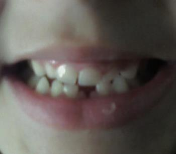 first tooth gone - Maverick looses first tooth