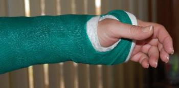 new cast - latest treatment for work-related injury