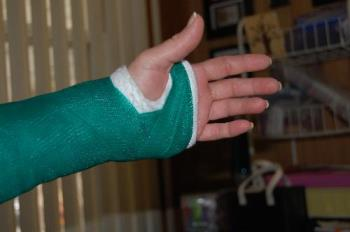 cast - it extends above my elbow, which is bent at 90 degree angle