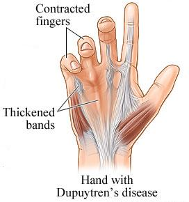 Dupuytren's Contracture - This is what I have on the tendon of my middle finger, almost in the middle of my palm. It hurts when pressure is applied. So far, it hasn't contracted my finger but the doc says it will, eventually.
