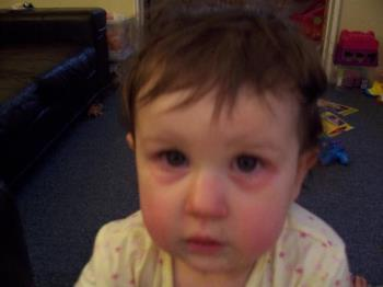 Poorly Becca - My youngest daughter when she had her bad eyes