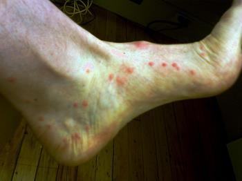 help!!(t_t) - Flee bite photo.  Mine are smaller and covers both of my legs and feet, plus some spots on my arms.(T_T)