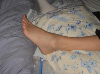picture of my foot when I hurt it - ankle injury Broken foot