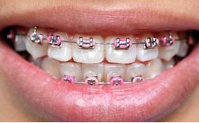 braces for teeth - would you like to put braces on your teeth?