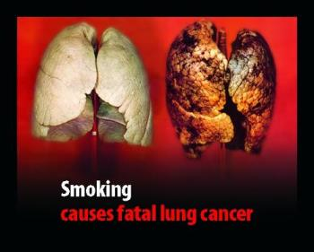 lung cancer - healthy and infected lungs