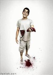 Liver donation - Liver donation